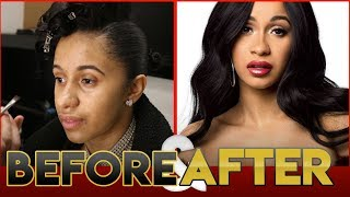 CARDI B | BEFORE & AFTER TRANSFORMATION ( Plastic Surgery )
