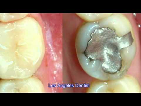 Los Angeles Dentist -s