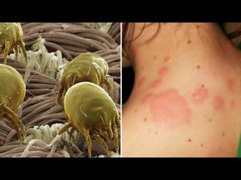 How To Get Rid of Scabies Mites Within 24 Hours (видео)