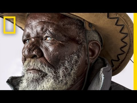 Curing Blindness: How Thousands Are Getting Their Sight Back   Short Film Showcase