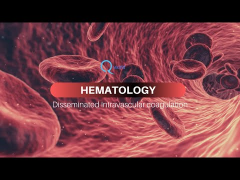 Disseminated Intravascular Coagulation (DIC) : Review for NEET-PG, USMLE and MBBS