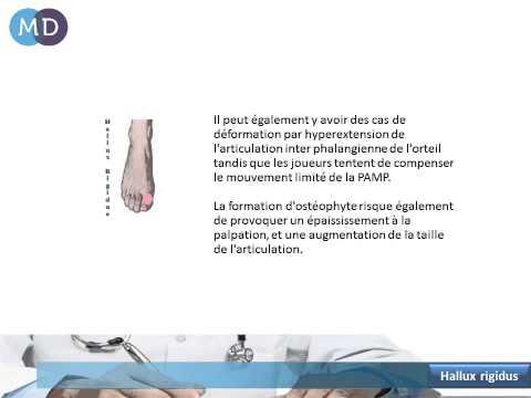 comment soulager l'arthrose du gros orteil