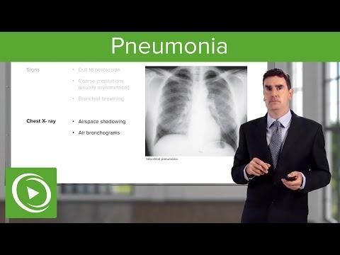 Pneumonia: Types, Classification, Symptoms & Management – Respiratory Medicine   Lecturio
