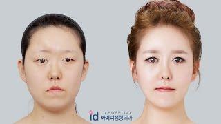 Video Let Me In Korea Plastic Surgery  | Facial Bone Surgery, Forehead Augmentation MP3, 3GP, MP4, WEBM, AVI, FLV September 2018