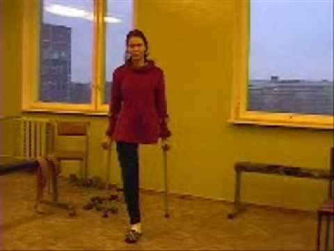 Female Amputees On Crutches