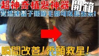 開箱樂-根本是禿頭救星!超神奇植髮神器