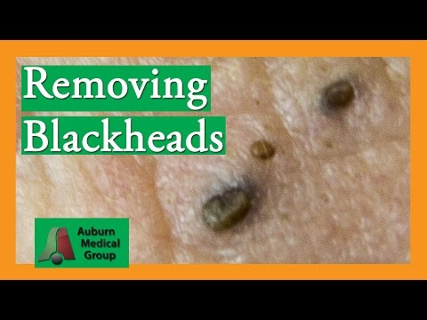 Crazy Eye Blackheads!