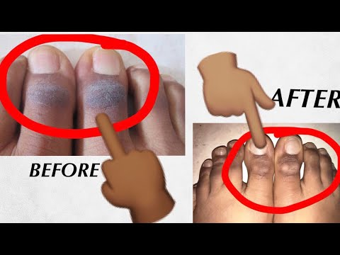 HOW TO GET RID OF DARK, ROUGH & FLAKY FEET| Befor And After Photo