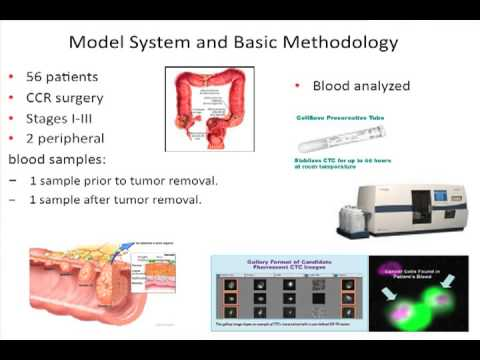 Impact of the presence of circulating tumor cells on cancer – Jaime Gonzalez Taranco