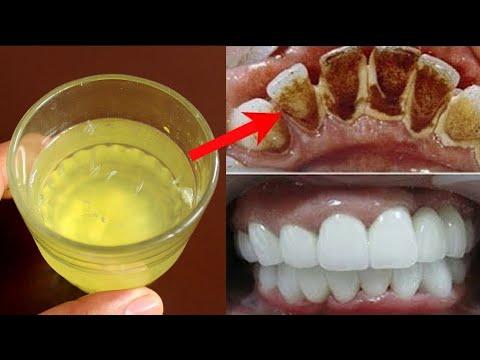 दांत साफ और सफ़ेद करने के उपाय