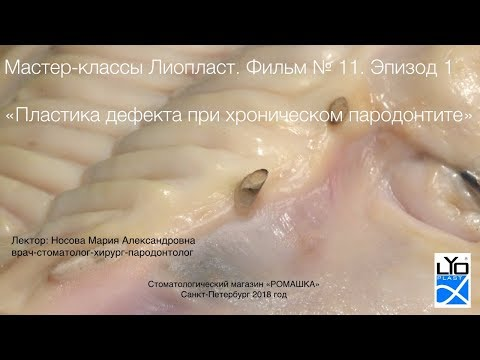Мастер-класс Лиопласт 11.1 Трехмерная аугментация альвеоляра при пародонтите