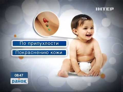 Воспаление лимфоузлов ребенка. Лимфоаденит
