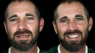 Youtube Video Crash Accident Causes Need For Man's Extreme Smile Makeover by Brighter Image Lab!