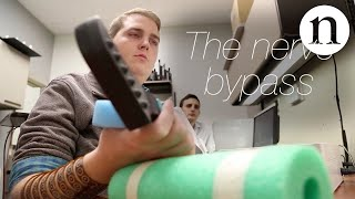 After a broken neck left him quadriplegic, Ian Burkhart was told he would never be able to use his hands. Now he can grasp a ...