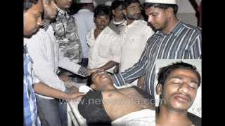 Newswala : Young boy attacked at Malakpet Paltan.