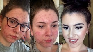 UPDATED   Acne Coverage Foundation Routine