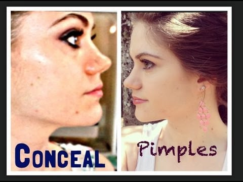 How to Conceal Pimples QUICK And EASY