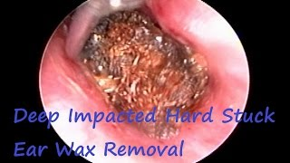 This video show Endoscopic deep Impacted hard stuck earwax removal in young lady .She was suffering from Ear Blockage , Decrease Hearing , Vertigo & Ear Pain since last 1 month - Got Relief after this Procedure .She gives history regular ear cleaning with cotton ear bud (Q-Tip) .Local anesthesia spray used during procedure . Patient is comfortable during whole procedure . Got relief immediate after procedure .Irrigation done with diluted Betadine with normal saline .Ear drop prescribe after procedure .Thanks !!!Have a Nice Day .