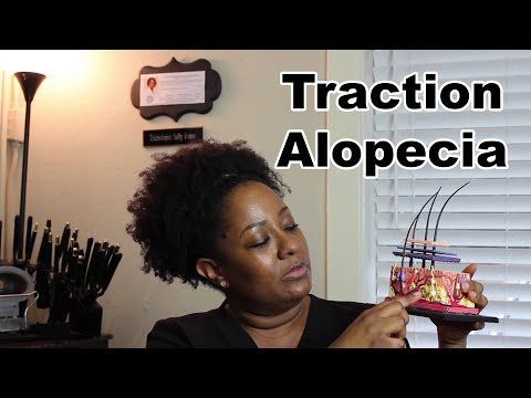 What causes Traction Alopecia? Thinning edges on natural hair.