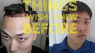 Video Things I Wish I Knew Before Hair Transplant MP3, 3GP, MP4, WEBM, AVI, FLV November 2018