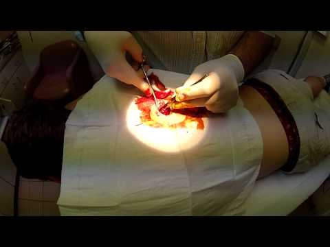 CYST EXTRACTION