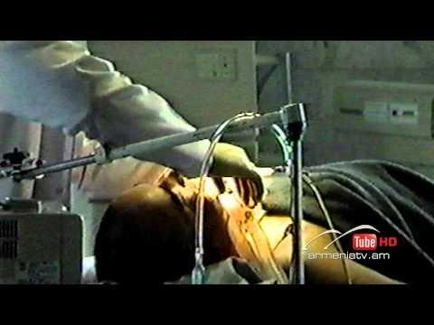 Սուր անկյուն. Հատուկ դեպքեր 06.04.2014 - Թողարկում 4 / Sur ankyun. Hatuk depqer (видео)