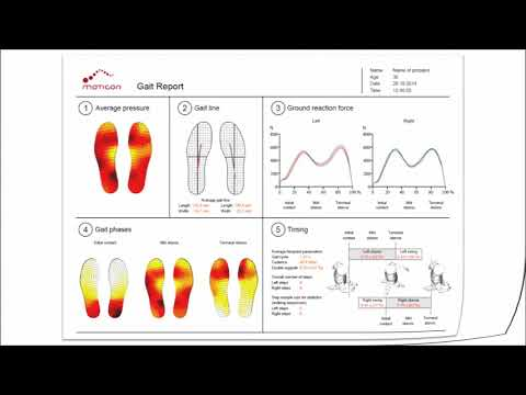 Wireless in-shoe pressure insoles: Gait Report