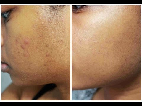 Skincare Routine   Fading Acne Scars and Reducing Pimples   JourneyToWaistLength