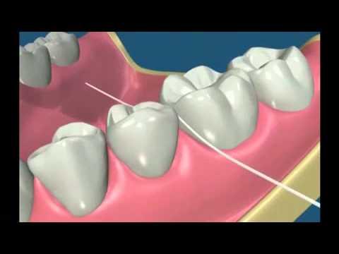 L'utilisation du fil dentaire