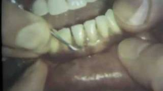 Scaling And Root Planing: Part II Mandibular Teeth