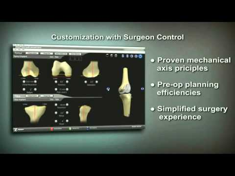Zimmer Customized Orthopedics Knee Replacement