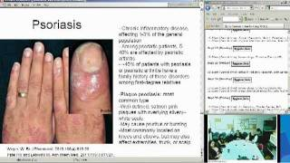 Contact Dermatitis Part 1 (Elise Herro, MD)