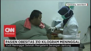 Video Pasien Obesitas 310 Kilogram Meninggal Dunia MP3, 3GP, MP4, WEBM, AVI, FLV Desember 2017