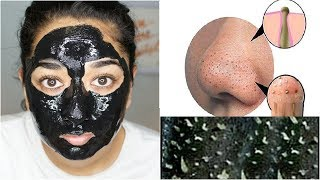 ब्लैकहेड्स हटाने का चमत्कारी उपाय / Remove Blackheads From  Nose / Face At Home | Peel Of Mask
