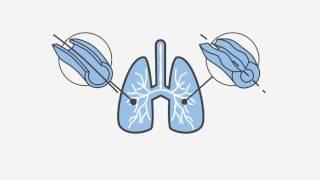 Πρόσεξε τα πνευμόνια σου σαν τα μάτια σου!