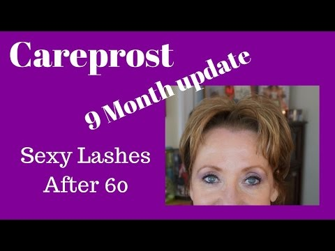 Bimatoprost | Careprost 9 month Update with Before and After Pictures | Sexy Lashes After 60