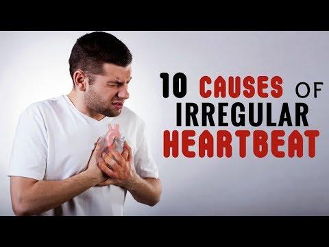 10 Causes of Irregular Heartbeat