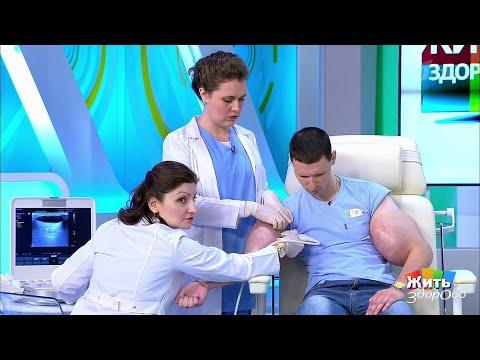 Жить здорово Руки-базуки: продолжение истории. 22.08.2018 - DomaVideo.Ru