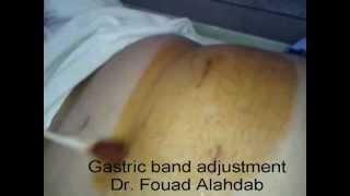 حقن حزام المعدة د. فؤاد الأحدب Gastric Band Adjustment Dr.Fouad Alahdab