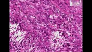 Histopathology Uterus --Leiomyosarcoma