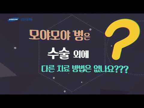 [1분 메디캠_뇌졸중 편_김종수 교수] 모야모야 병은 수술 외에 다른 치료 방법은 없나요?