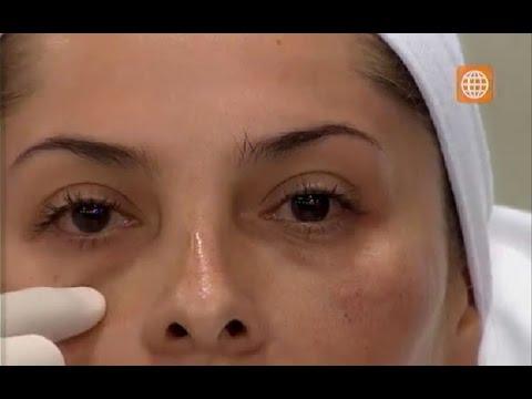 Dile adiós a las ojeras con este tratamiento facial