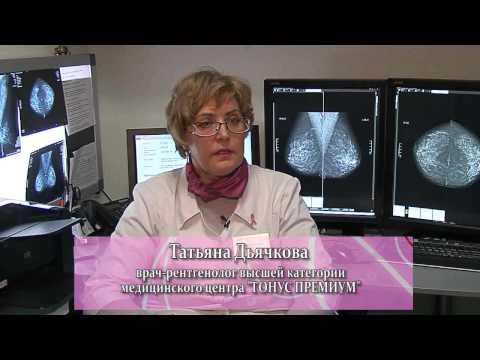 Диагностика заболеваний молочных желез. Лучевая диагностика