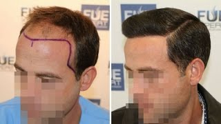 Video FUE Hair Transplant (3958 grafts in NW-Class lV-A), Dr. Juan Couto - FUEXPERT CLINIC - Madrid, Spain MP3, 3GP, MP4, WEBM, AVI, FLV Februari 2019