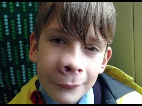 Schoolboy whose nose suddenly swelled up had tennis ball sized deadly tumour
