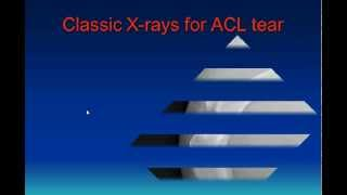 Diagnosing Partial ACL Tears