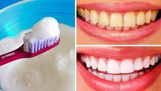 Video 10 Natural Ways to Whiten Teeth at Home MP3, 3GP, MP4, WEBM, AVI, FLV Agustus 2018