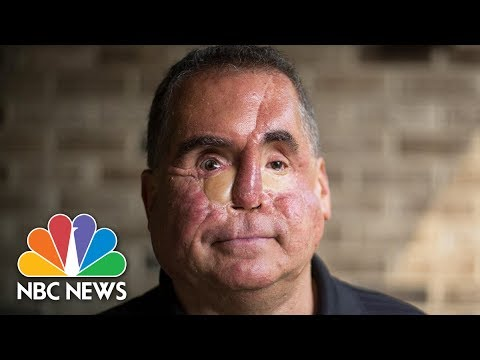 Journey Of A Bullet: Shot By Suspect | NBC News