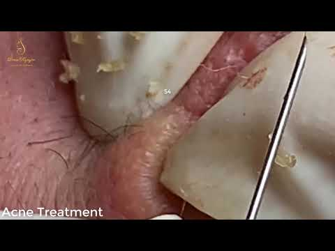 BLACKHEADS TREATMENT FOR  a handsome boy (54) | Loan Nguyen