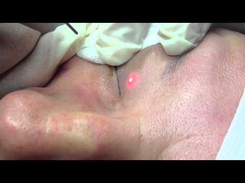 comment soigner xanthelasma